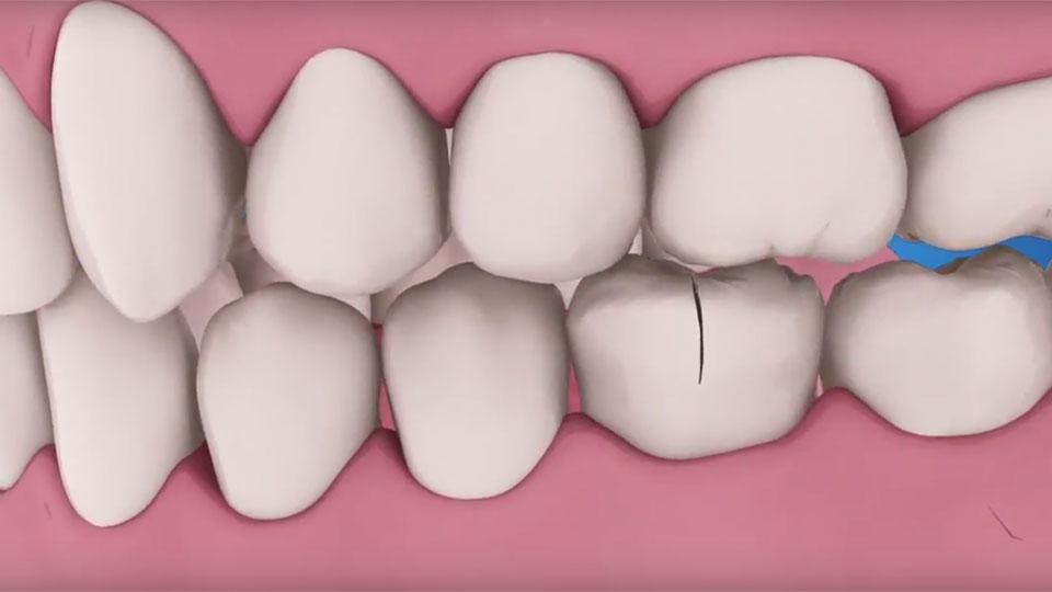 Traumatic teeth injury